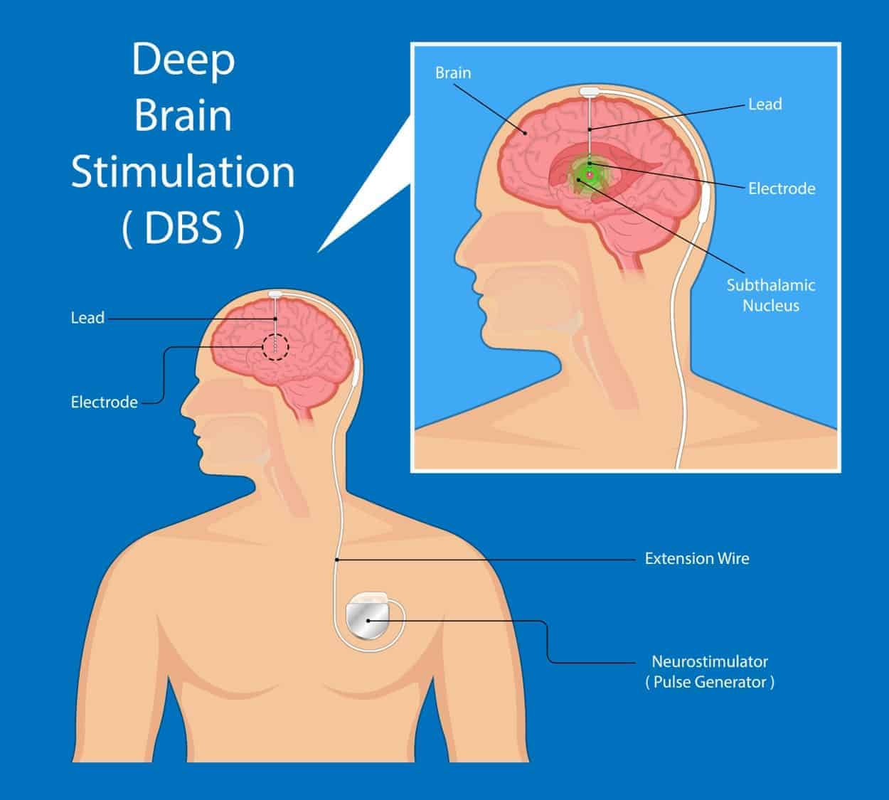 Deep brain stimulation Parkinson's treatment