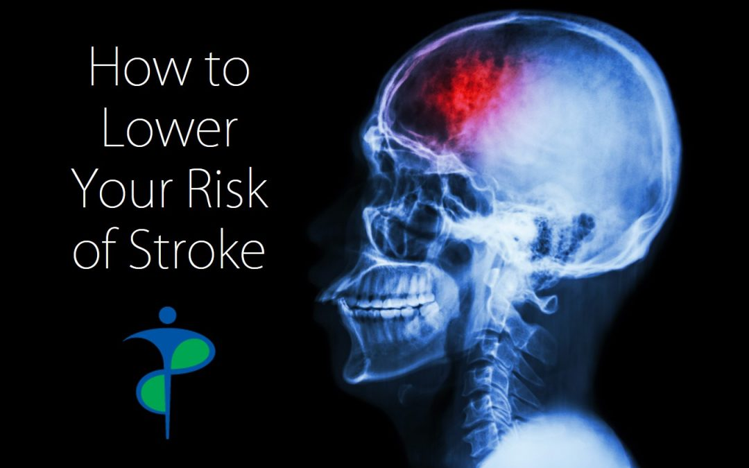 How to Lower Your Risk of Stroke