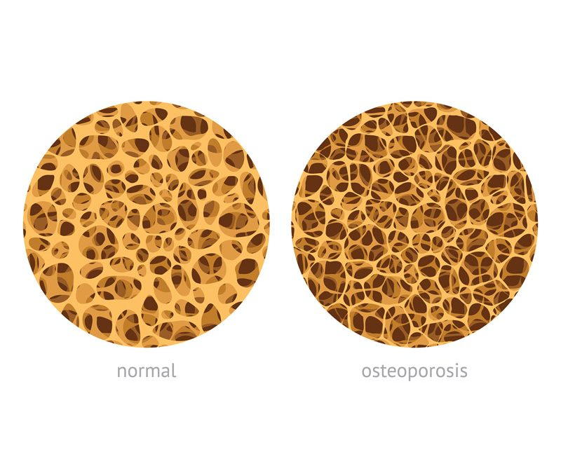 Diet and Osteoporosis: What We Eat Can Affect Bone Health
